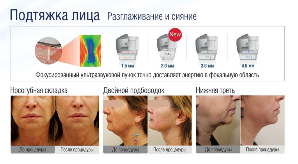 Подтяжка лица на аппарате ультразвукового SMAS-лифтинга