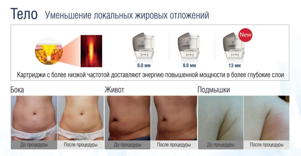 Ультразвуковой SMAS-лифтинг - уменьшение локальных жировых отложений